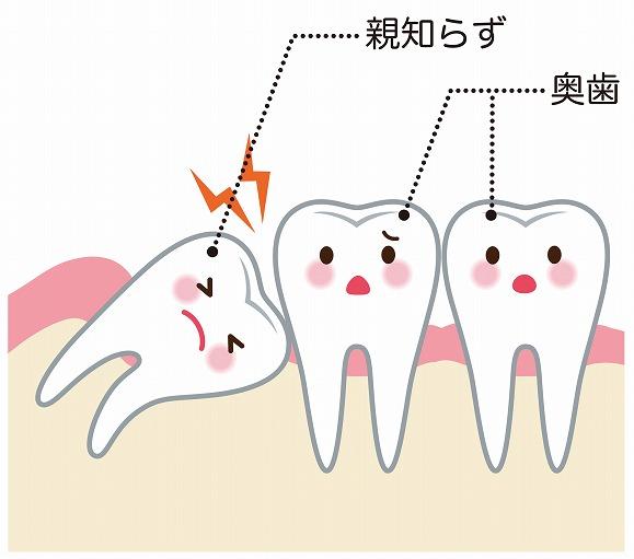 親知らずの隣の歯が虫歯になってしまう