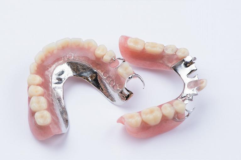 義歯・入れ歯について
