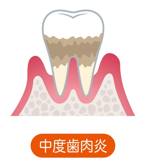 中等度歯周炎